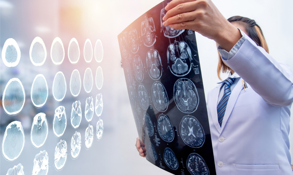 SPECT scan now medically acceptable for brain injury diagnosis and prognosis: nuclear medicine group