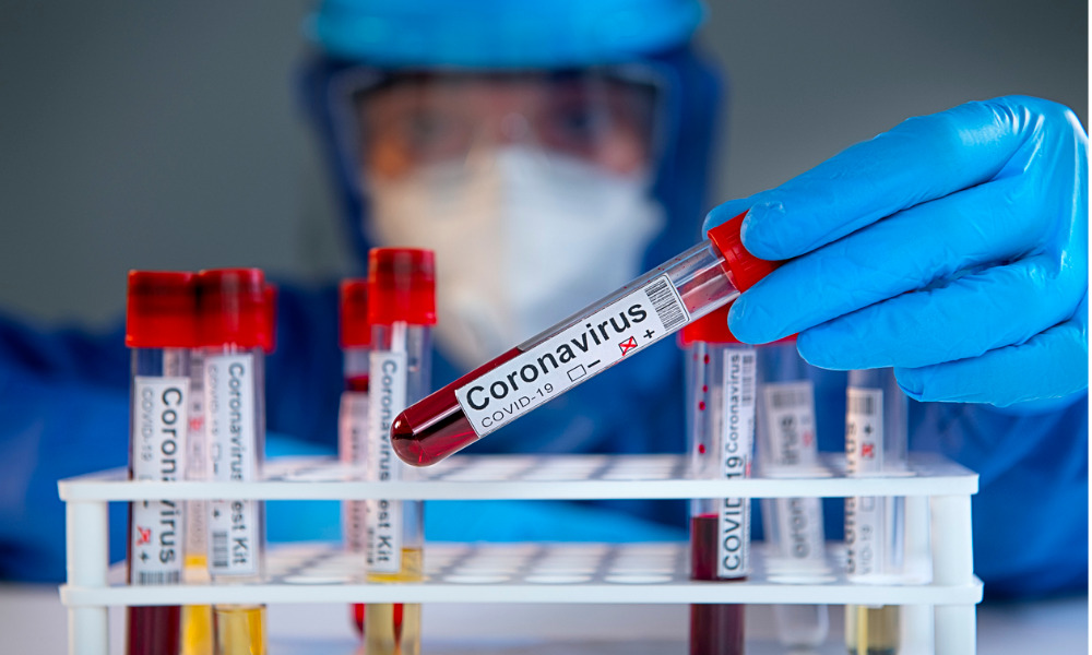 Many employers keen on rapid testing to stay open
